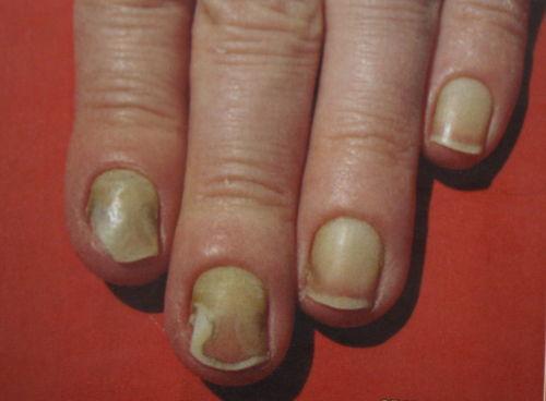 Fußnägel eklige Akne